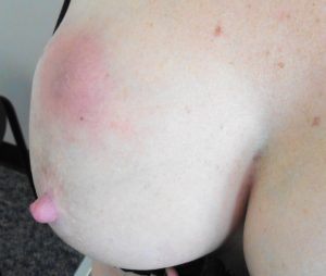 Breast abscess symptoms necessary words