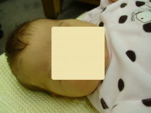 "One month old baby with so called ""breastmilk jaundice"""