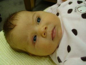 """One month old baby with so called """"breastmilk jaundice"""""""