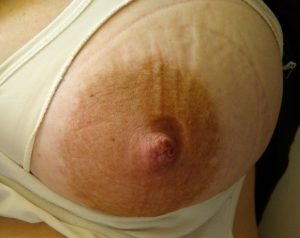 swelling of the nipple and areola